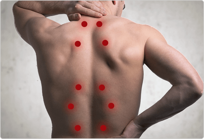 Vitality Healthcare Trigger Point Injections